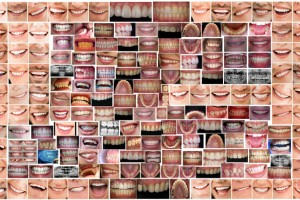 A picture is worth a thousand words – why you should take intraoral pictures