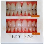 Bioclear Intro Anterior Matrix Kit
