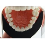 Intra-Oral Photography Mirror Buccal Large