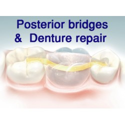 Dentapreg PFU Ideal for Posterior Bridge & denture repair - 6cm
