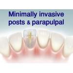 Dentapreg PINPost cured elastic & flexible pins 12 pcs