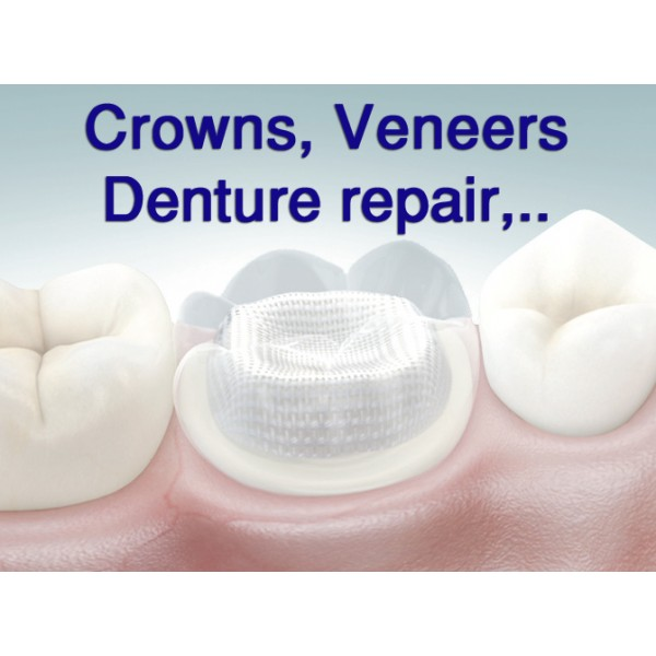Dentapreg UFM Ideal for Large restorations & crowns, denture repair