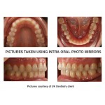 Intra-Oral Photography Mirror Occlusal Adult